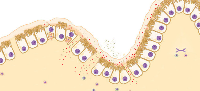 Leaky gut, permeabilidad intestinal aumentada